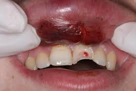 The importance of wearing a mouthguard!
